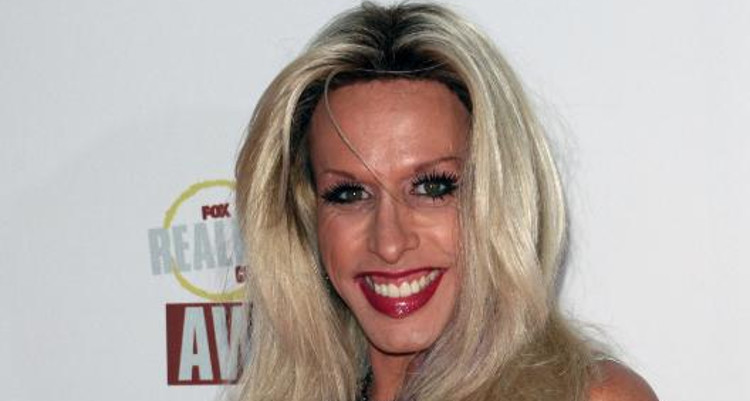 Did Alexis Arquette Die Due to Aids