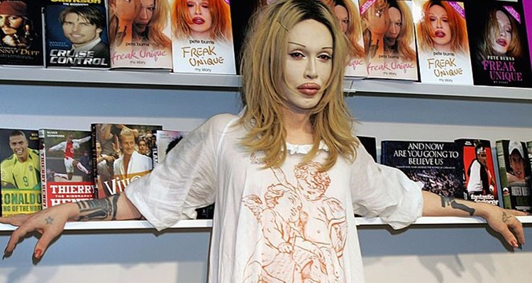 Pete Burns Wiki