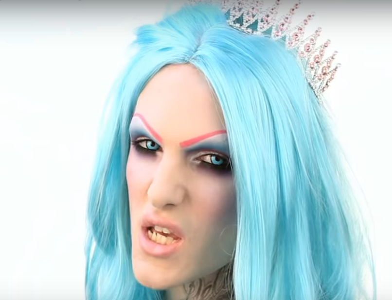Jeffree Star's Teeth Before Surgery